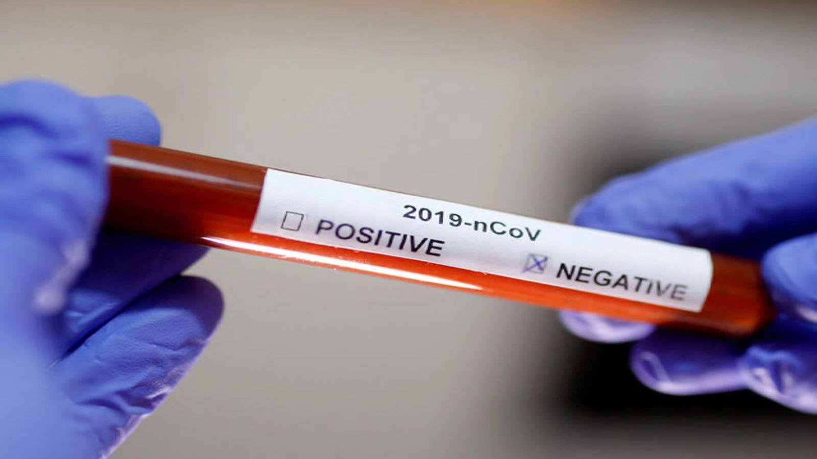coronavirus test negative